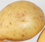 عصير البطاطا للتخلص من حرقة المعدة