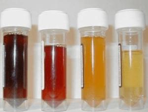 مرض البيلة الدموية اسبابه و طرق علاجه