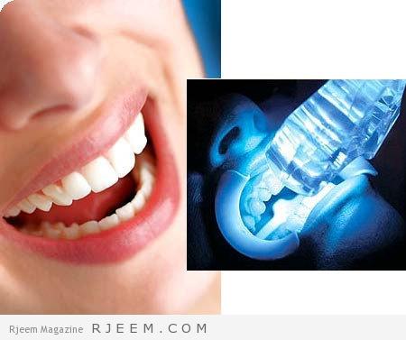 تبييض الاسنان بالليزر