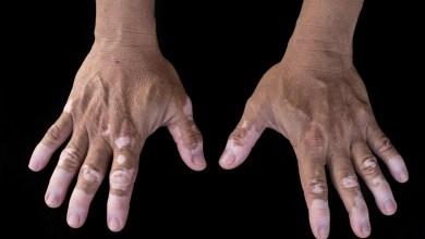 Photo of البهاق – اسباب وعلاج مرض البهاق