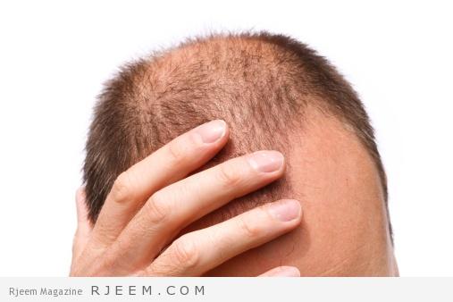 الصلع - اسباب وعلاج مشكلة الصلع عند الرجال