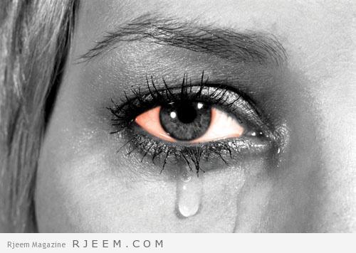 رمد العيون - الوقاية من مرض رمد العيون - مجلة رجيم