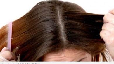Photo of اكثر من 5 خلطات علاج فروة الراس-عالج فروة رأسك بطرق طبيعية و سليمة