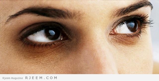 طريقة بسيطة لازالة الهالات السودة تحت العين