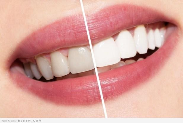 15 طريقة طبيعية لازالة اصفرار الاسنان