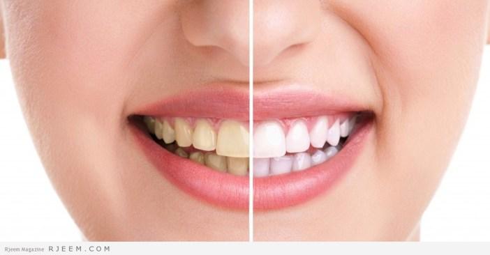نتيجة بحث الصور عن طريقه التخلص من بقع الاسنان نهائيا