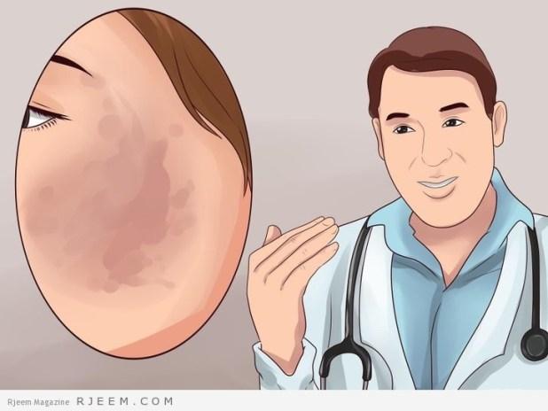 4 طرق لعلاج الكلف