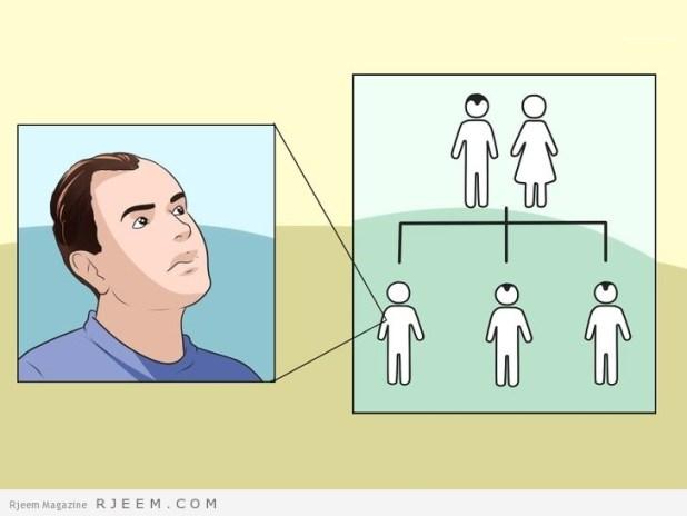 5 طرق لحماية نفسك من الصلع