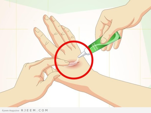 3 خلطات منزلية لازالة علامات الجروح القديمة
