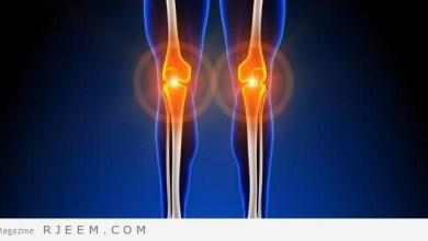 Photo of علاج برد العظام والعضلات بالاعشاب
