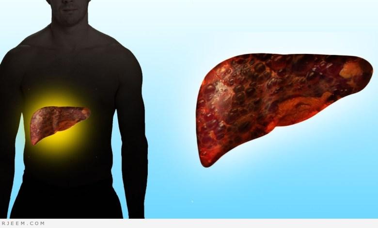 Photo of نظف الكبد من السموم في رمضان بتناول تلك الأطعمة على الإفطار
