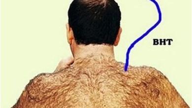 Photo of زراعة الشعر فى ايران تعرف على التكلفة المميزات والعيوب