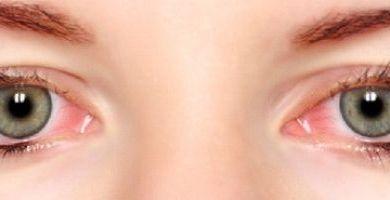 Photo of علاج حساسية العين للحامل بالاعشاب الطبية