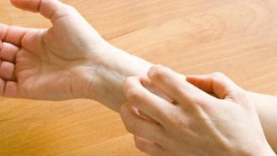 Photo of علاج حساسية الجلد بالاعشاب الطبيعية