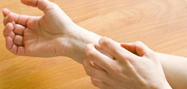 نتيجة بحث الصور عن علاج حساسيه الجلد بالاعشاب الطبيعيه