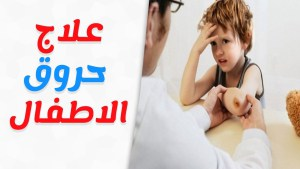 Photo of طرق معالجة الحروق عند الأطفال