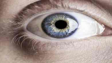 Photo of طريقة تخفيف صبغة الميلانين في العين
