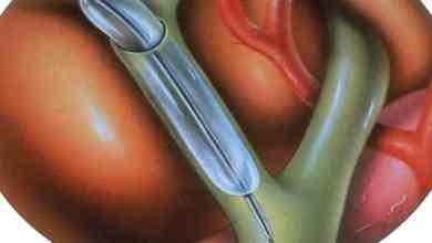 Photo of علاج انسداد القناة الصفراوية