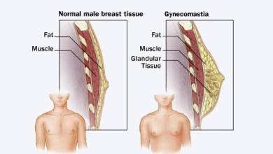 Photo of كيف تصغير الثدي عند الرجال