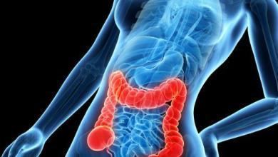 Photo of علامات مرض سرطان القولون