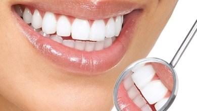 Photo of كل ما تريد معرفته عن زراعة الاسنان