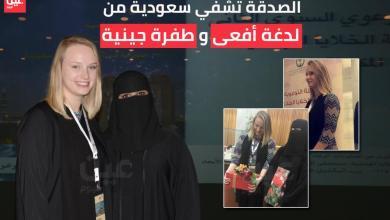 """Photo of بركة الصدقة تشفي """"بدور"""" من لدغة أفعى وطفرة جينية"""