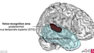 Photo of اكتشاف المنطقة بالدماغ المسؤولة عن تمييز الأصوات