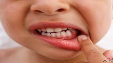 Photo of أعراض نقص الكالسيوم عند الأطفال