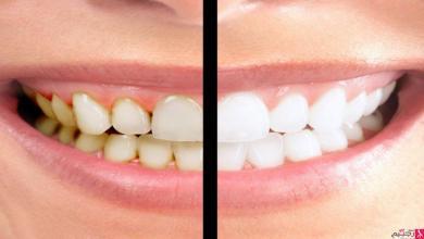 Photo of التخلص من جير الأسنان