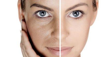 Photo of علاج حفر الوجه طبيعياً