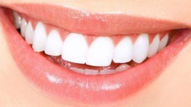 Photo of احصلي على أسنان بيضاء في خطوات بسيطة