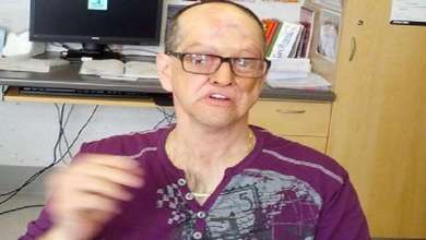 Photo of كندي ينتصر على السرطان ويفقد نصف وجهه