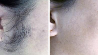Photo of 8 وصفات لإزالة شعر الوجه نهائيا