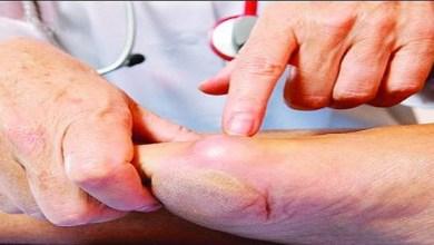 Photo of الجمعية السعودية لطب السمنة: 6 توصيات لعلاج السكري جراحياً