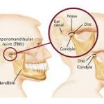 إلتهاب مفصل الفك Temporomandibular Joint Disease - TMJ