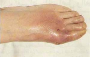 Photo of مرض النقرس , اعراض النقرس, علاج النقرس