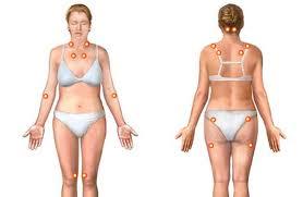Photo of الروماتيزم اللامفصلي , علاج الروماتيزم اللامفصلي