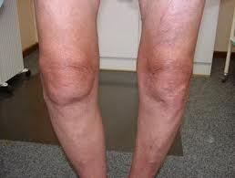 Photo of مرض المفصل التنكسي – خشونة المفاصل