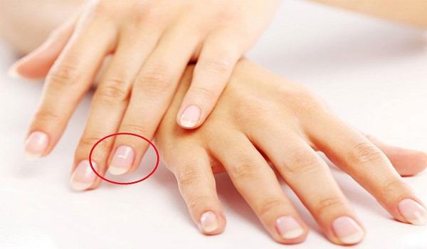 ماهي اعراض نقص الكالسيوم بالدم وطريقة علاجة
