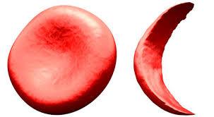 Photo of علاج فقر الدم Anaemia , أعراض فقر الدم