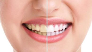 Photo of أسباب وطرق معالجة إصفرار الأسنان