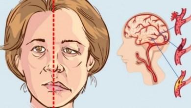 Photo of الجلطة الدماغية , اعراض واثار ومضاعفات الجلطة الدماغية