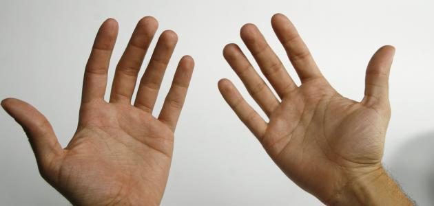 أسباب أصفرار اليدين مجلة رجيم