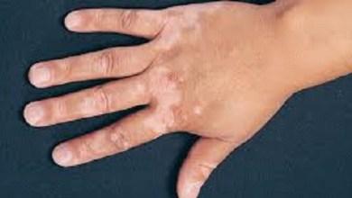 Photo of أسباب نقص الميلانين في الجسم
