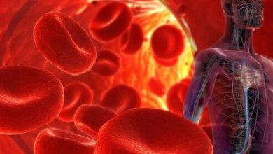 Photo of أعراض ارتفاع قوة الدم