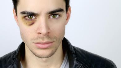 Photo of ما هو علاج سواد تحت العين