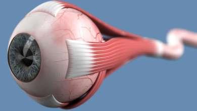 Photo of التهاب العصب الثالث للعين