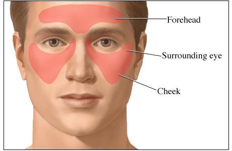 صداع مقدمة الرأس