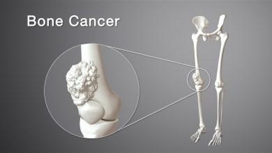 Photo of اعراض سرطان العظام
