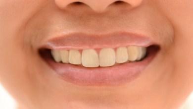 Photo of كيفية الحفاظ على الأسنان